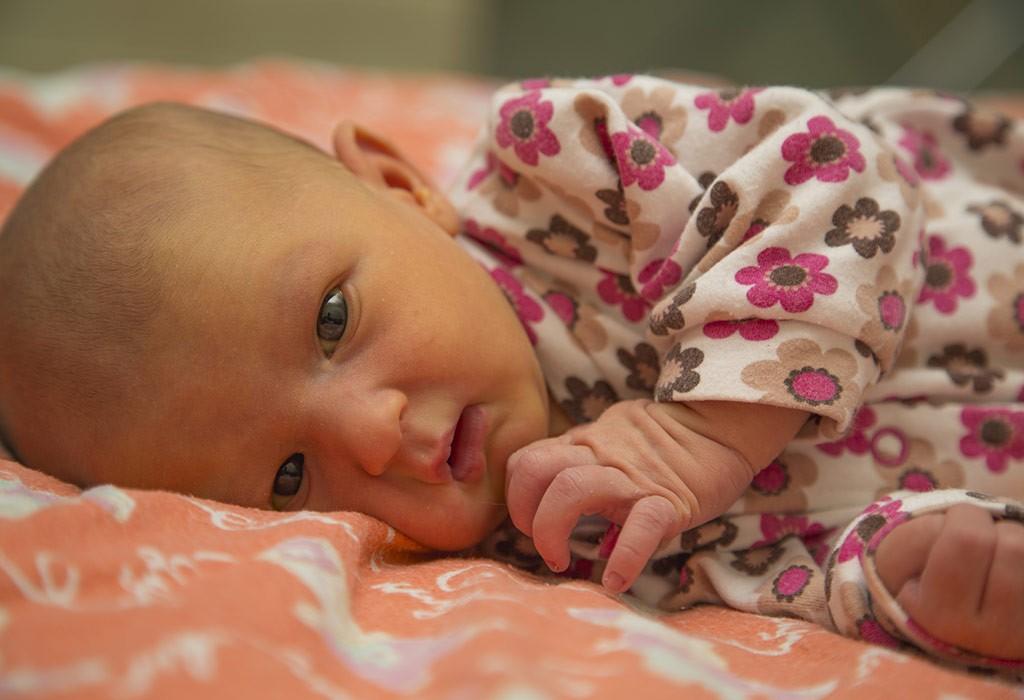 زردی در نوزادان