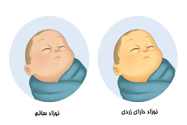 تشخیص زردی نوزاد